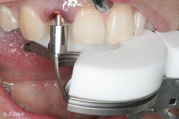 Fig. 4 Extraction atraumatique à l'aide d'un système qui en prenant appui sur les dents voisines, permet de tracter la dent.