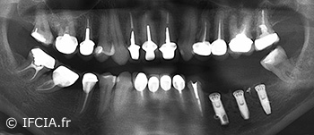 Fig. 7 : Panoramique dentaire de contrôle après l'intervention.