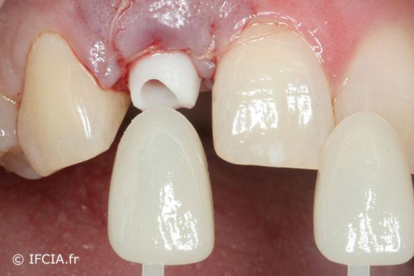 Fig. 7 Mise en place d'un pilier zircone usiné taillé en bouche puis choix de la coque qui sert à la réalisation de la couronne provisoire.