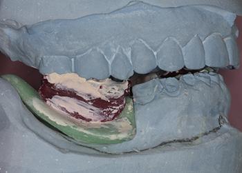 Fig 2 : Enregistrement des rapports intermaxillaires à l'aide d'une plaque base d'occlusion. Les modèles de travail sont issus d'une empreinte secondaire prise à l'aide de porte empreinte individuelle (PEI). Notez l'abrasion avancée des dents antérieures.