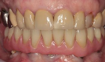 Figs 9a à e: Le bridge provisoire a réussi à donner satisfaction à la patiente au niveau esthétique, phonétique et masticatoire à la patiente. Par conséquent, la prothèse d'usage n'est qu'une copie améliorée de ce bridge provisoire. Noter la parfaite adaptation de l'armature sur les piliers. Figs. 9a à e : Le bridge provisoire a réussi à donner satisfaction à la patiente au niveau esthétique, phonétique et masticatoire à la patiente. Par conséquent, la prothèse d'usage n'est qu'une copie améliorée de ce bridge provisoire. Noter la parfaite adaptation de l'armature sur les piliers.