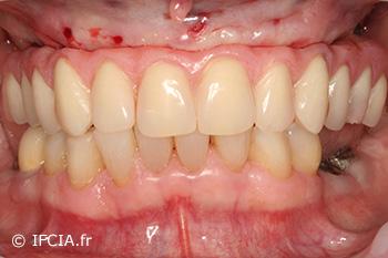 Fig. 8 : Prothèse provisoire, préparée préalablement à partir d'un modèle issu du guide chirurgical, en place le jour de la chirurgie