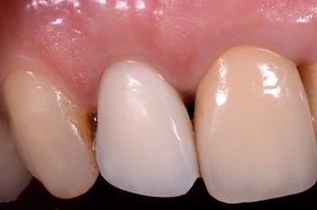 Fig. 9 : Contrôle à 15 jours de la cicatrisation gingivale avec la provisoire réalisée par le praticien traitant (Dr Jean Pierre Himpens).