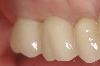 Fig.12 : Vue clinique des prothèses sur les implants 1 an après leur mise en place. Noter l'intégration tissulaire des restaurations implanto-portées.