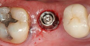 Fig. 2 : Vue occlusale du pilier définitif et du capuchon de cicatrisation directement après la pose de l'implant (Nobel Speedy 6X13) par la technique flapless.