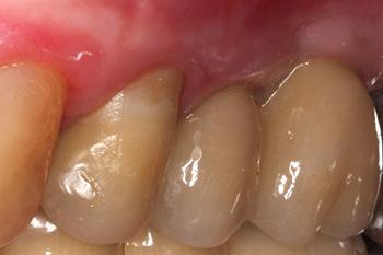 Fig.16 a et b: Vue finale 19 mois après le début du traitement. La patiente ayant suivi précédemment des soins dentaires en permanence pendant plusieurs années, retrouve le confort et la satisfaction qu'elle recherchait.