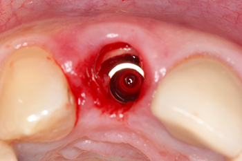 Fig. 8 : Vue occlusale après la mise en place de l'implant. On note un hiatus entre l'implant et la partie vestibulaire de la racine qui sera comblé par du Bio-Oss® (Geistlich