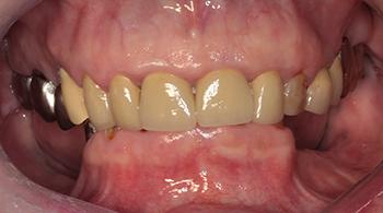 Figs 1a et 1b: La patiente présente un décalage de la hauteur osseuse entre la zone symphysaire et les zones postérieures. Une égression passive du bloc antérieur est fort probable. Les dents antérieures résiduelles ne sont pas conservables suite à des complications endodontiques et carieuses.