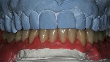Figs 3a à d: Après montage en articulateur, les différentes étapes de réalisation du montage directeur consiste à créer la place aux futures dents prothétiques et à matérialiser la réduction osseuse au niveau du guide. Une fois le montage terminé, il est dupliqué en guide résine acrylique transparente renforcé sur les faces vestibulaires.