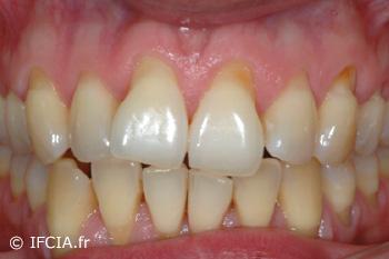 Fig.1 Récessions multiples maxillaire supérieure. Vue clinique pré-opératoire