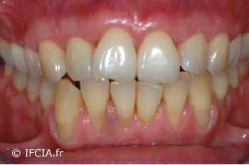Fig.10. Cicatrisation à 12 mois, maxillaire droit et gauche