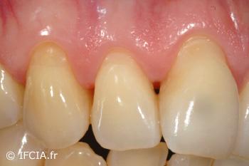 Fig.2 Récessions multiples maxillaire supérieure droit. Vue clinique pré-opératoire