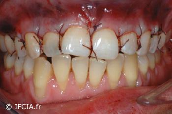 Fig.6 Sutures suspendues stabilisant le complex (Tunnel+TC) maxillaire droit et gauche