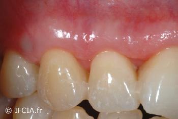Fig.7 Cicatrisation à 1 mois