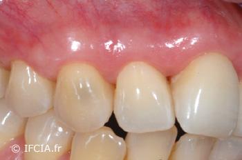 Fig.8 Cicatrisation à 3 mois