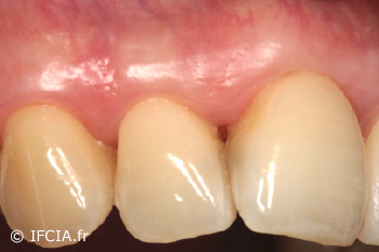 Fig.9 Cicatrisation à 12 mois