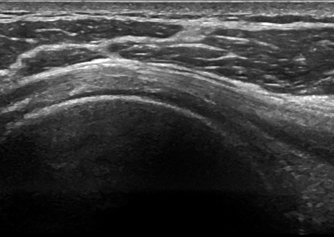 Shoulder ultrasound image
