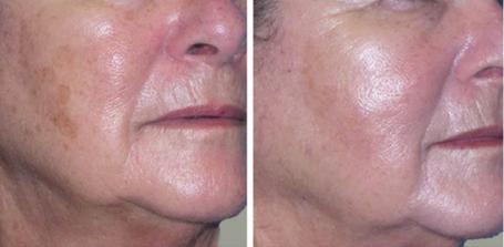 ClearLift Laser Skin Resurfacing