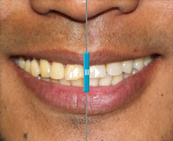 Beljenje zob v Hiši lepote ART-PE