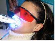 Beljenje zob ART-PE