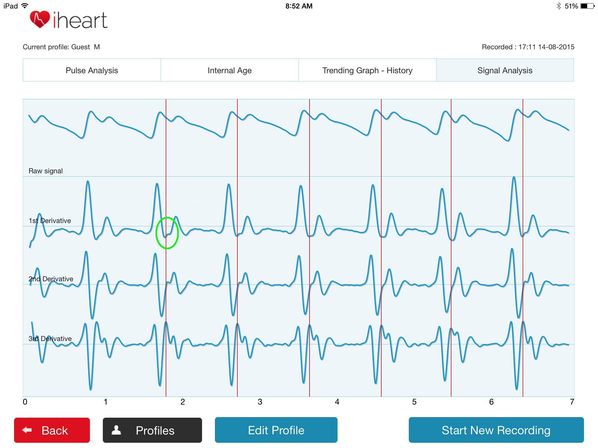 iheart internal age pulse tracker