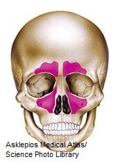 Diagram of skull showing paranasal sinuses