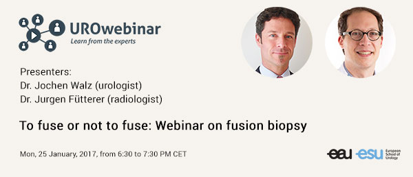 To fuse or not to fuse: Webinar on fusion biopsy