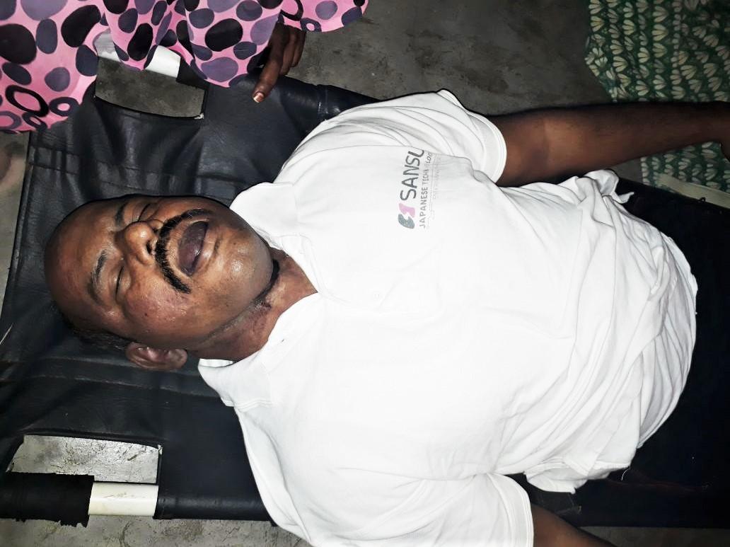 The body of Pastor Gideon Periyaswamy of Maknayeem Church in Tamil Nadu, India. (Morning Star News)