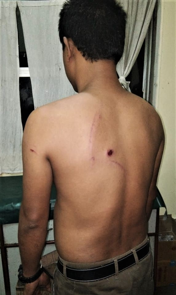 Christian injured in attack in Bongaigaon District, Assam state, India. (Morning Star News)
