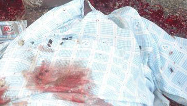 Detail of the body