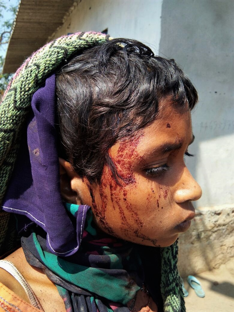 Mob beat Savita Madkami, 13, when she tried to rescue her mother. (Morning Star News)