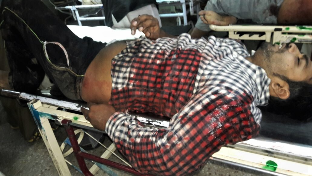 Azhar Iqbal on hospital stretcher shortly before his death. (Morning Star News)