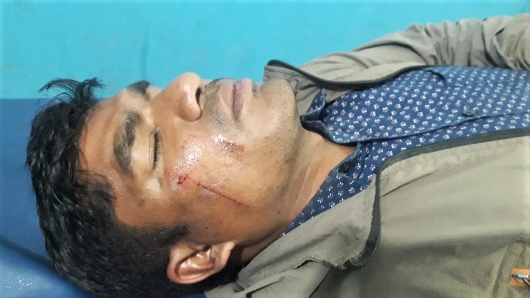 Pastor Dhurba Kumar Pariyar after motorcyclists attacked him in Sarlahi District, Nepal. (Morning Star News)