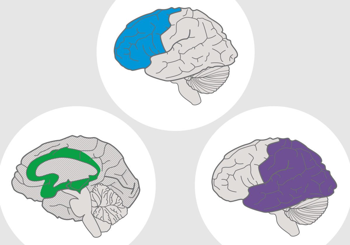 Illustration of three brains with one of the UDL networks highlighted on each