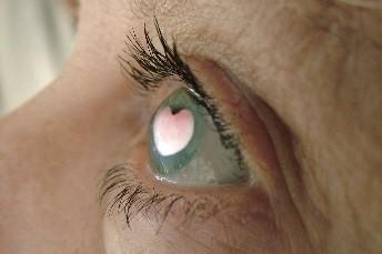 heart pupil in eye