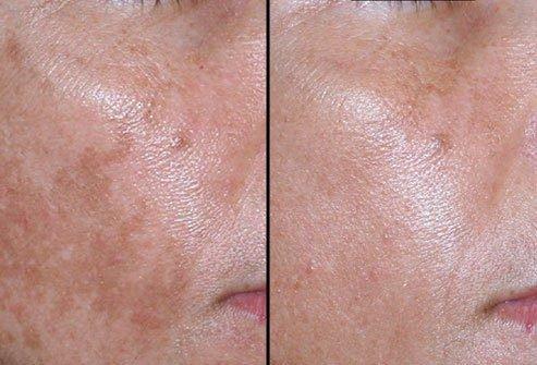 pittsburgh hyperpigmentation treatment