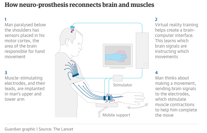 How neuro-prosthesis reconnects brain & muscle