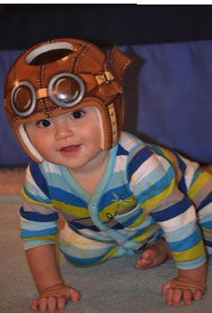 Baby with painted medical helmet