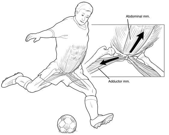 Groin Pain/Injury