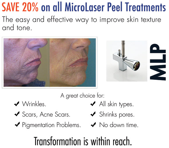 SAVE 20% on all MicroLaser Peel Treatments - The easy and effective way to improve skin texture and tone. A great choice for:  Wrinkles. Scars, Acne Scars. Pigmentation Problems. All skin types. Shrinks pores. No down time.