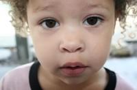Hulp voor ouders van kinderen met voedingsproblemen