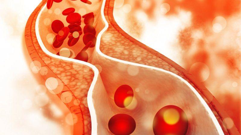 Colesterolo alto: 10 cose da sapere se non lo hai