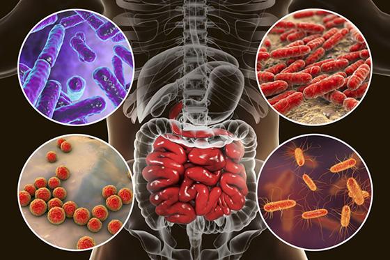 Gut cancer image