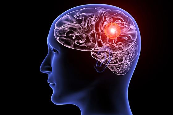Image of a brain aneurysm