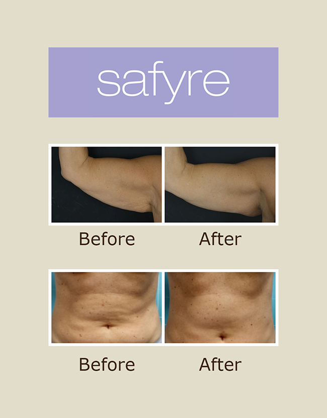 Anti-aging and body contouring treatments with SAFYRE RF