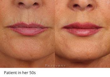 Patient in her 50s