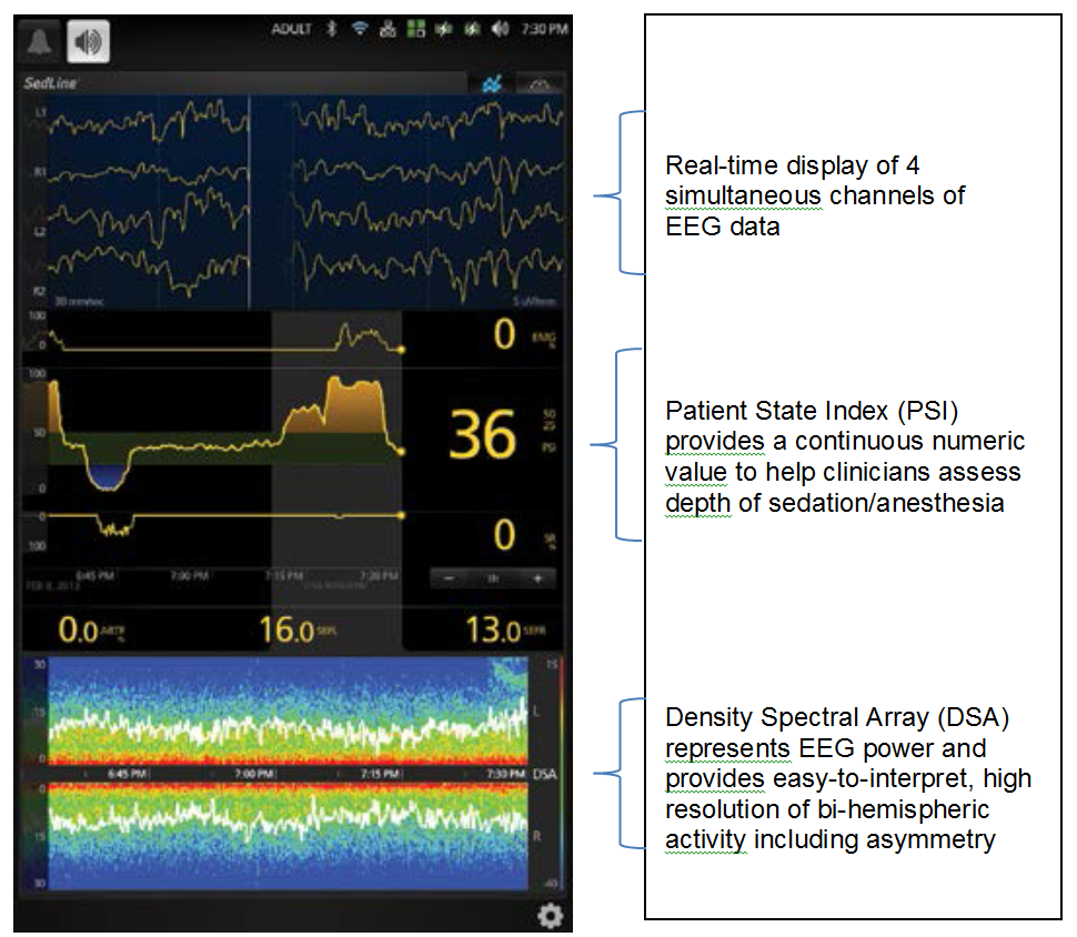 Sedline Monitor Display with readings for EEG PSi and DSA