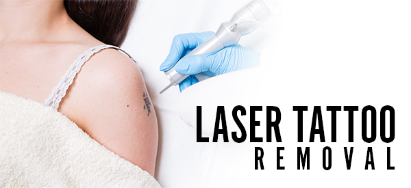 20% OFF All Laser Tattoo Removal