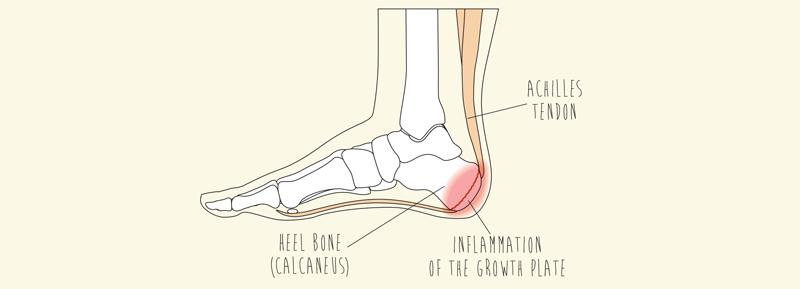 Calcaneal Apophysitis (Sever's Disease)