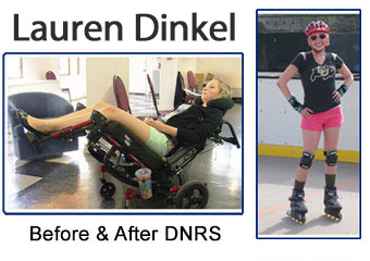 Lauren Dinkel Before and After DNRS